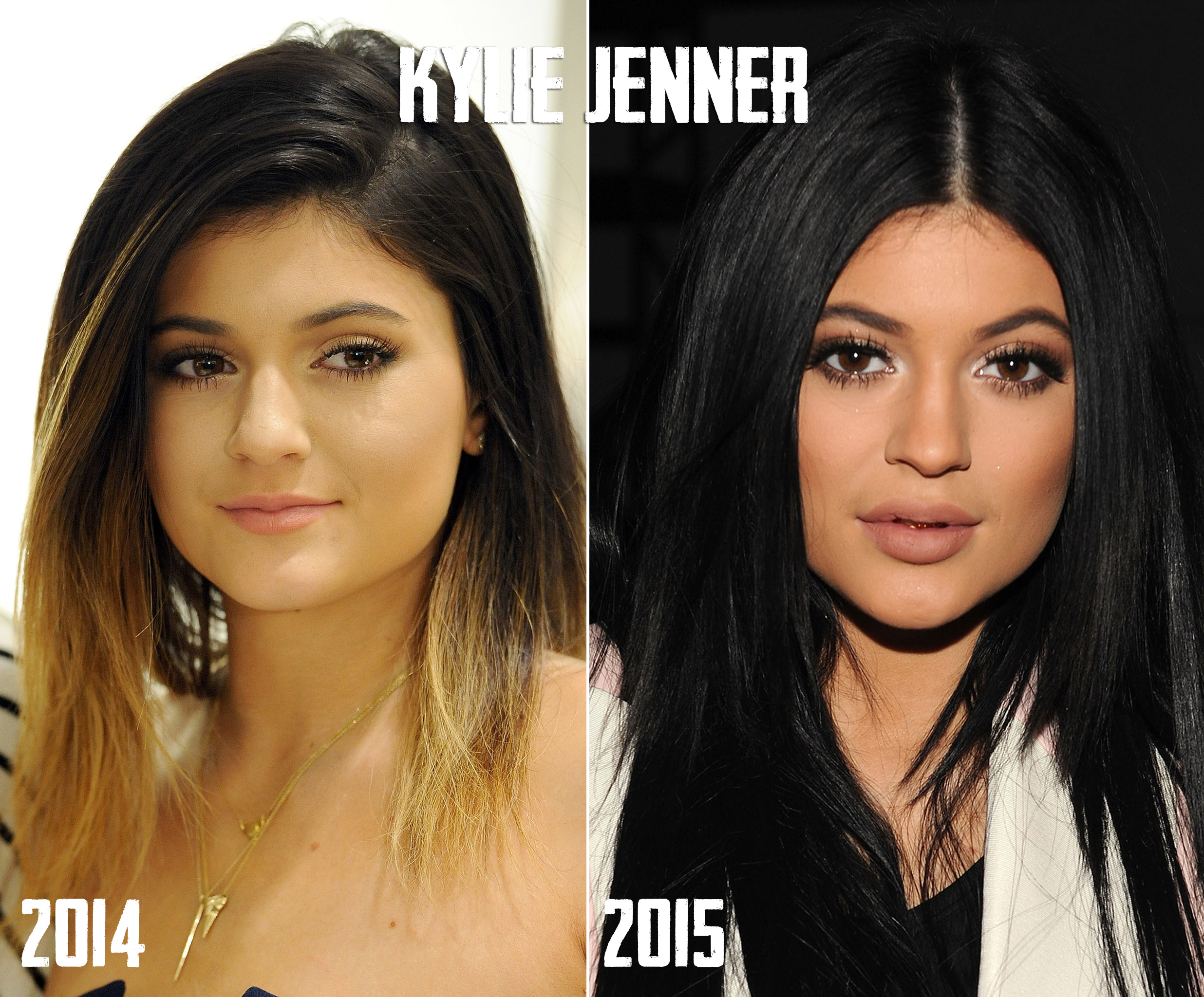 Kylie-Jenner-Lips-Before-After-Dr-Siew