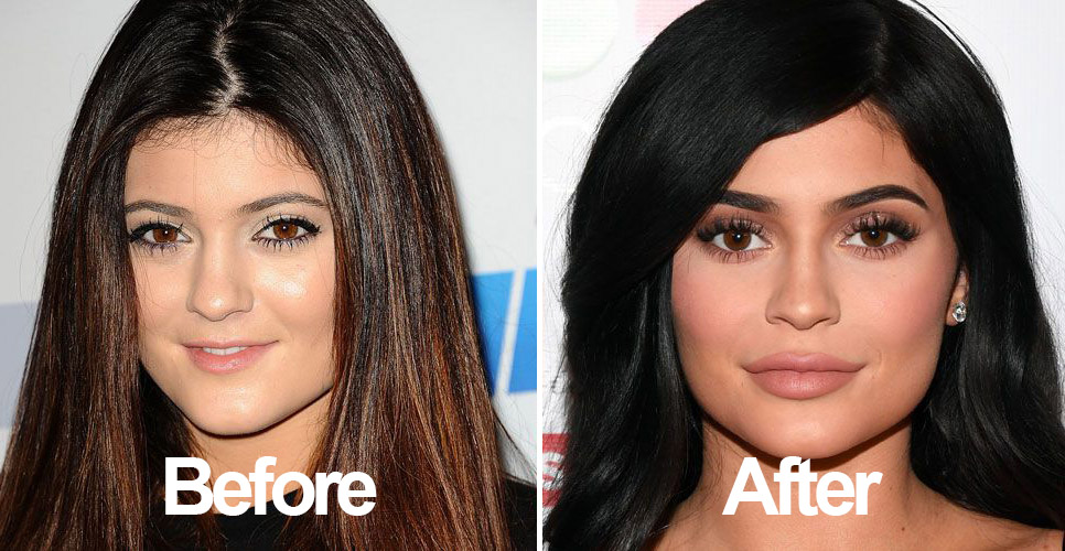 Kylie Jenner Before and After Money Fame Plastic Surgery