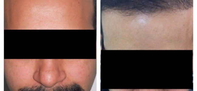 Hair transplant should always have a surgical background